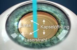 Auge-Kapsulotomie-Text