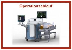 Operationsablauf der Femtophako