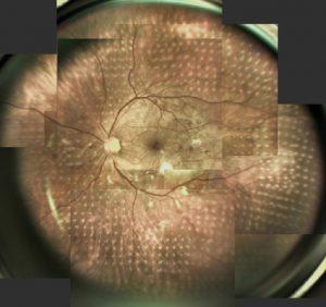 diabetische Retinopathie, Zustand nach Navilas Laserbehandlung